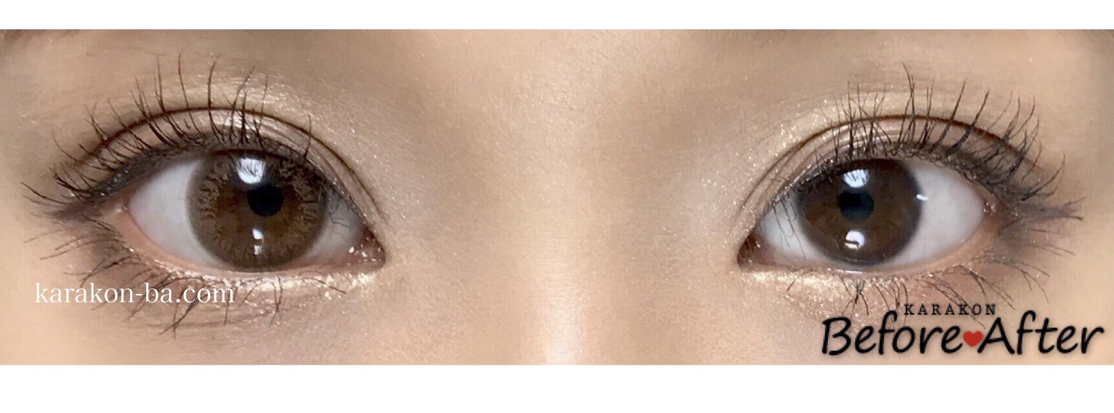 アンバーブライト装着画像/両目で比較