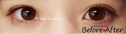 Diya(ダイヤ)エマショコラのカラコン装着画像/両目で比較レポ
