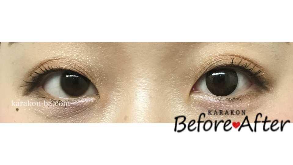 Calme Dor(キャレムドール)ブラウン+ブラックのカラコン装着画像/両目で比較レポ
