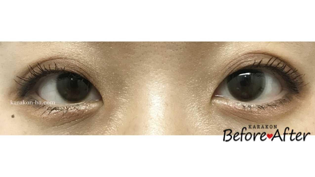 BELTA(ベルタ)ナチュラルブラックのカラコン装着画像/両目で比較レポ