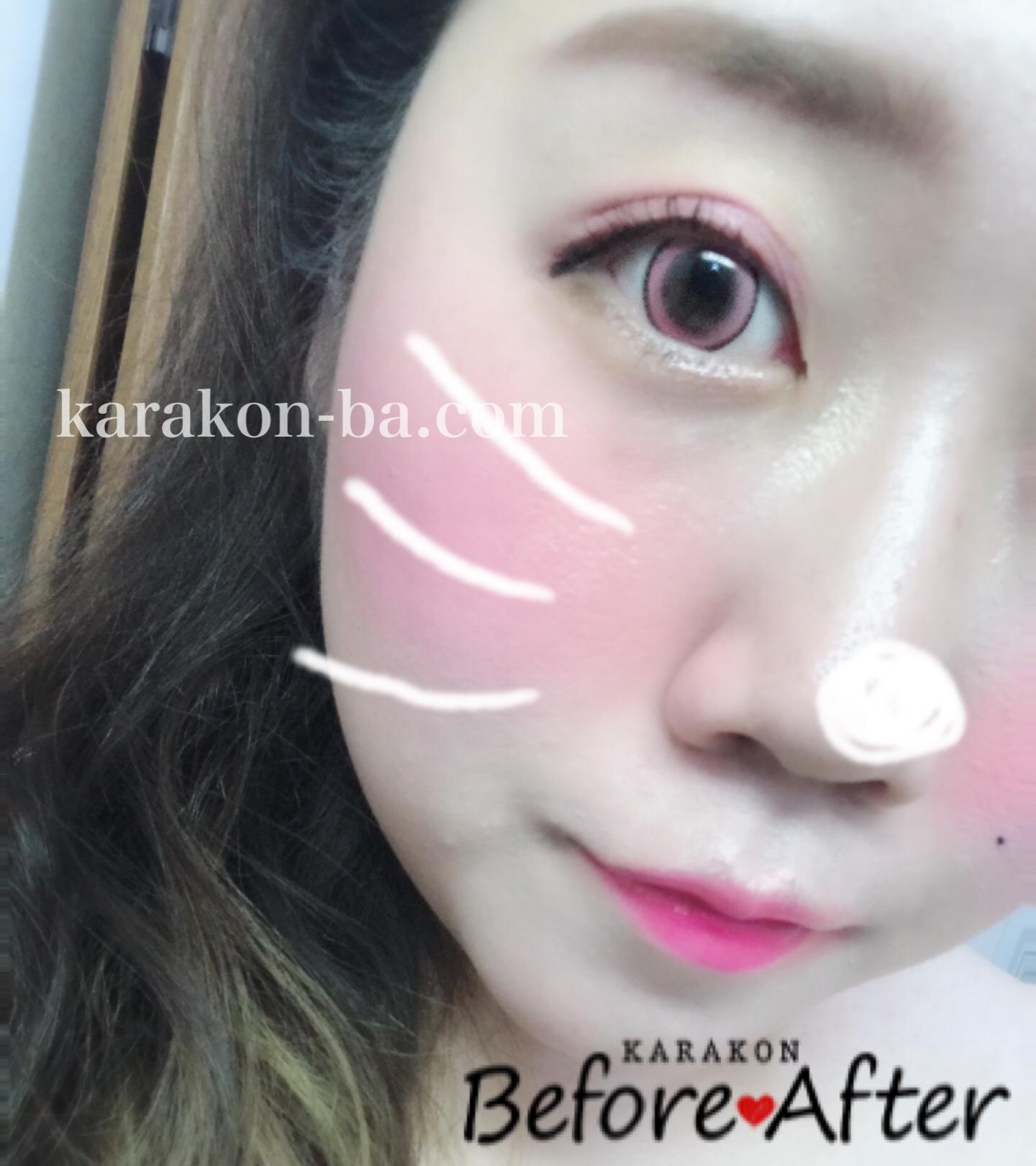 Assist ChouChou(アシスト シュシュ)イチゴミルクのカラコン装着画像/別パターン