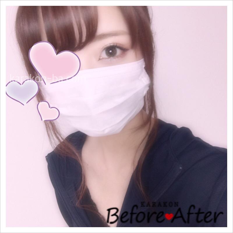 eyelist(アイリスト)シャインのカラコン装着画像/別パターン②