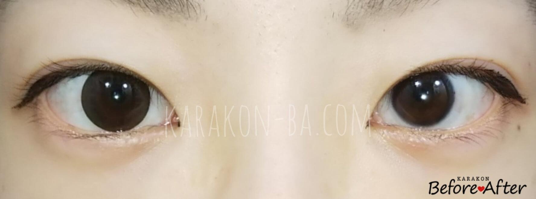 ショコラのカラコン装着画像/裸眼と比較