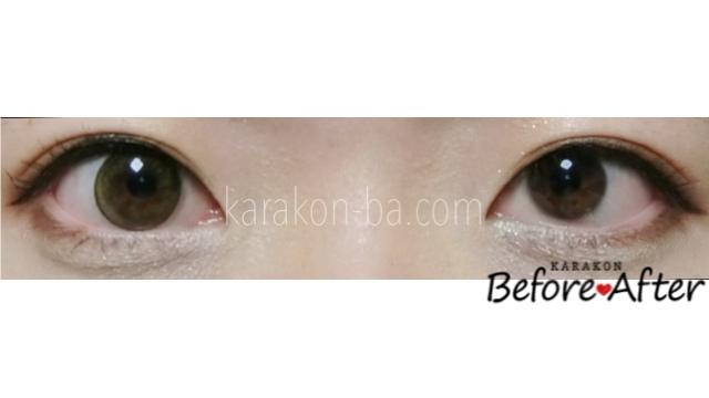 ラブオリーブのカラコン装着画像/裸眼と比較