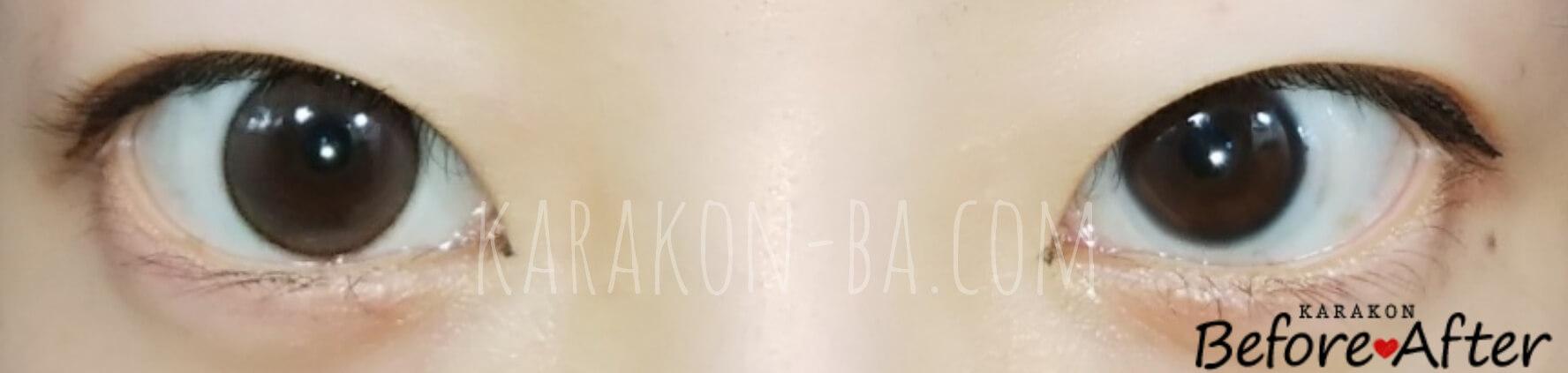 【NEW】パールベージュのカラコン装着画像/裸眼と比較