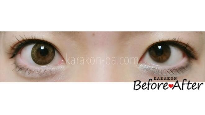 ヴィーナス -クラシックブラウン-のカラコン装着画像/裸眼と比較