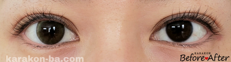 ミミオリーブのカラコン装着画像/裸眼と比較