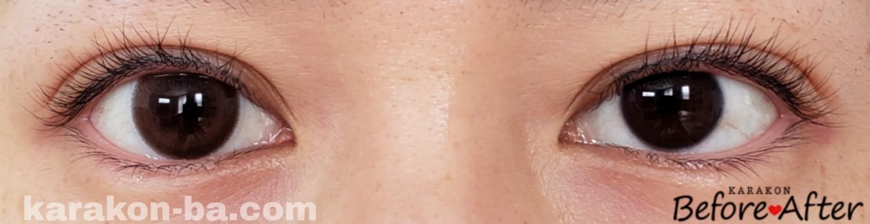 メロウロゼのカラコン装着画像/裸眼と比較